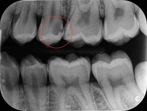Hidden caries encircled