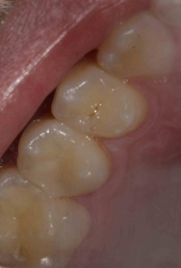 restored tooth with white filling